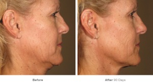 before_after_ultherapy_results_neckblond