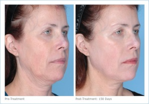 Ultherapy-face-6
