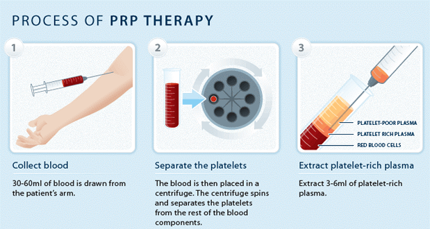 process-of-prp-therapy