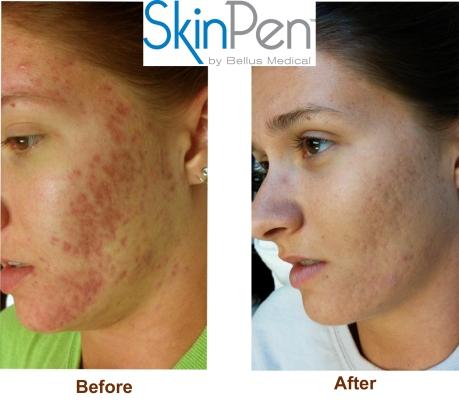 SkinPen-before after-logo